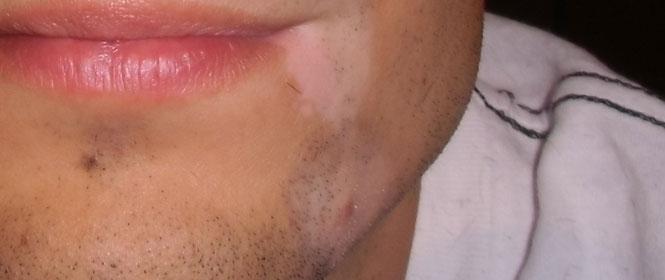 Příznaky vitiliga